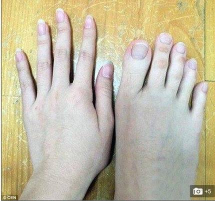 足 中指 長い